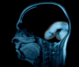 B.cervellino malato e impotente